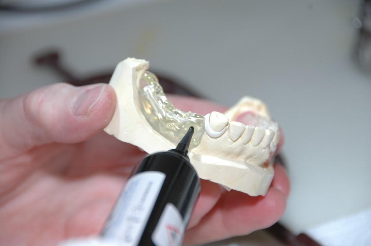 Odontotecnico al lavoro con una protesi